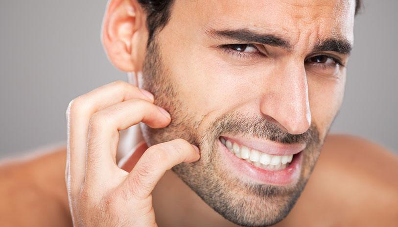 barbe gratte